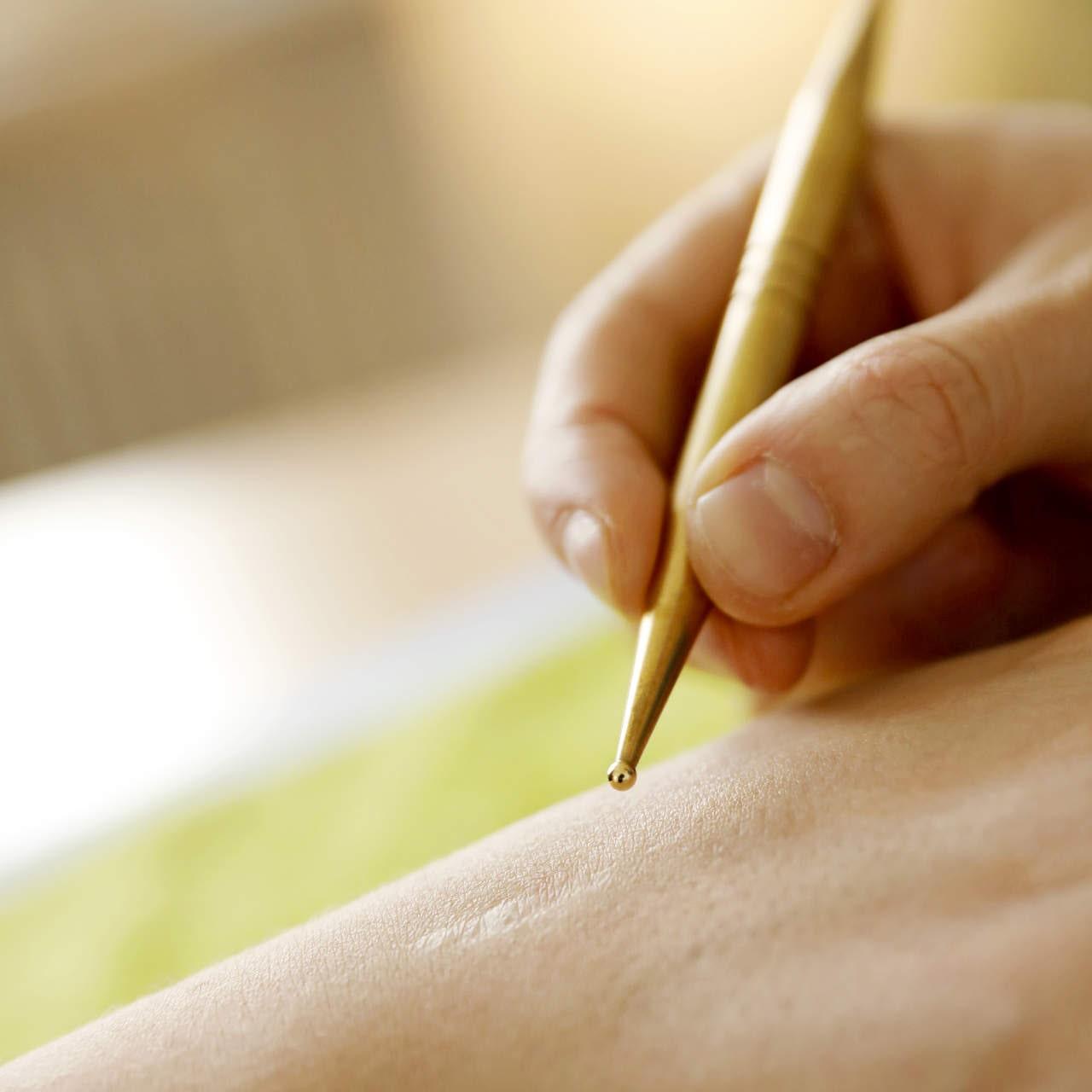 Narbenbehandlung an einer Hand